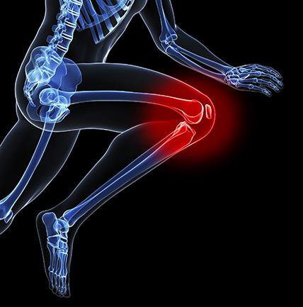 Боль в колене при эндопротезирование коленного сустава