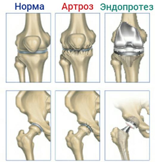 Эндопротезирование, норма, артроз и эндопротез