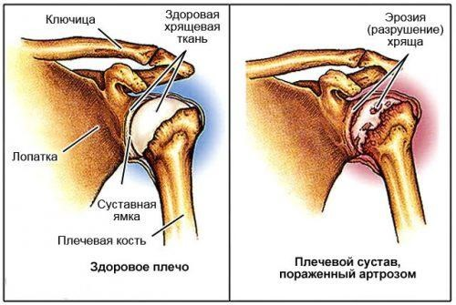 Показания к эндопротезированию плечевого сустава
