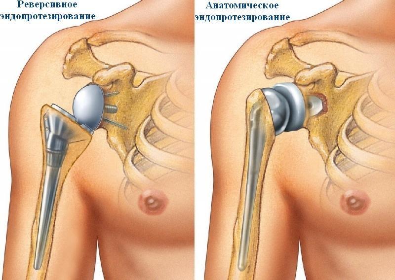 Виды эндопротезирования плечевого сустава