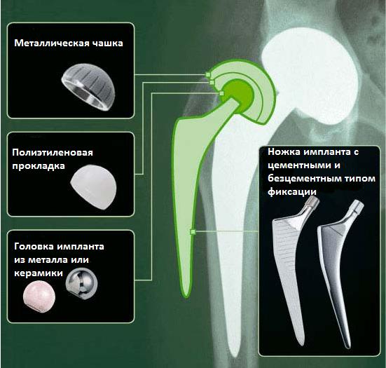 эндопротез при тотальном эндопротезировании тбс