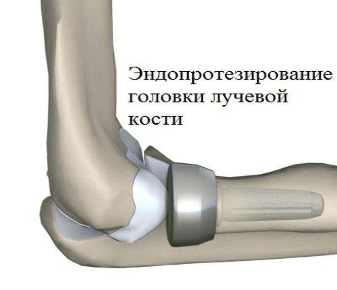 Фото эндопротезирования головки лучевой кости